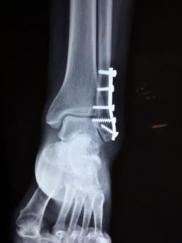Unfallversicherung-röntgenbild-gebrochener-knoechel